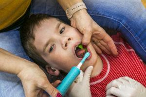 Dentální hygiena - detailní pohled